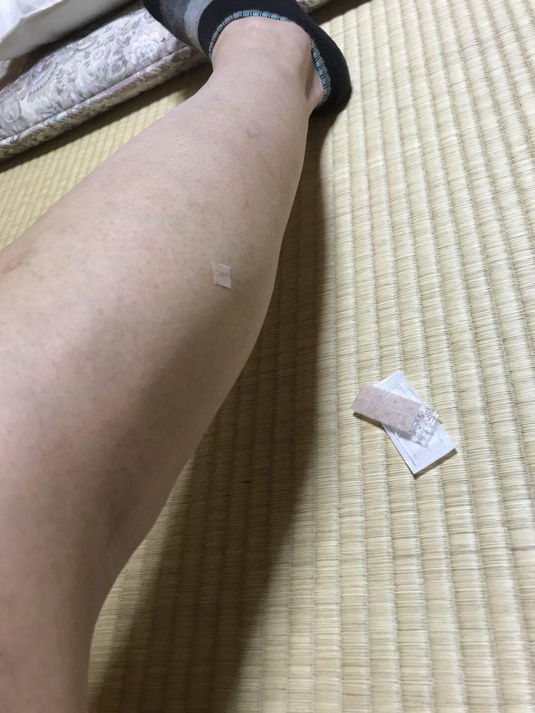 痙攣予防に円皮鍼