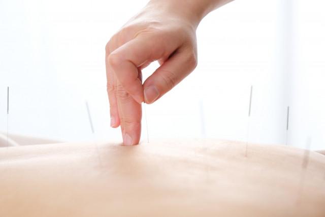 鍼灸治療で自然治癒力を最大限に発揮させます