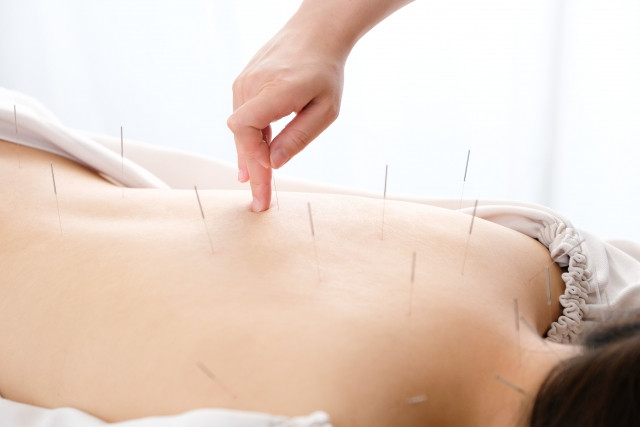ツボへの的確な鍼灸施術で寝違えを原因から改善