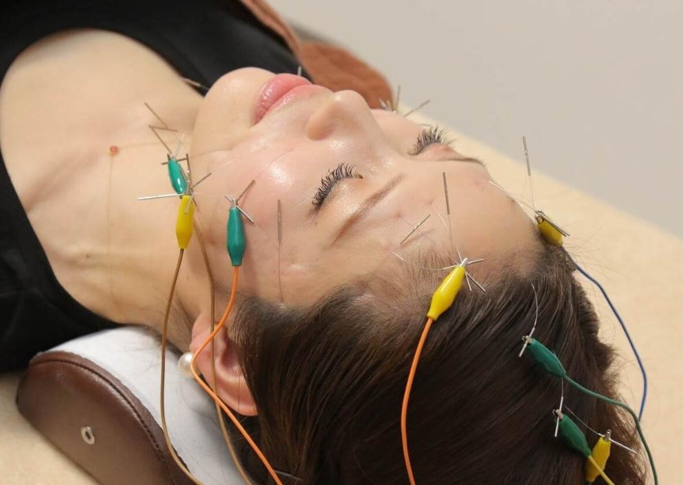 美容鍼で肌細胞の活性化を目指します