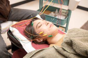 電気パルスを流す美容鍼