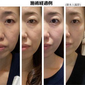 美容鍼施術経過例